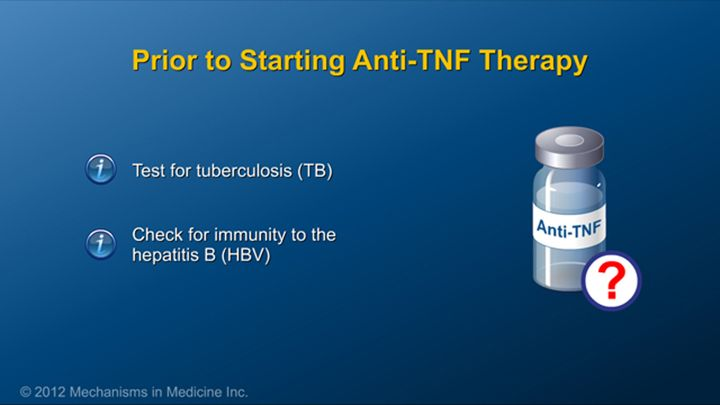 Before starting on anti-TNF therapy, patients need to be tested for tuberculosis and to see whether they have immunity to the hepatitis B virus.slide show: preparing for ibd therapy. this slide show describes ways patients with inflammatory bowel disease ibd can prepare for their therapy and medications.