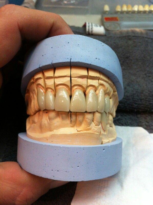 Art dentaire, par S. Levrey et Lyra. Tout K prothèse, Paris