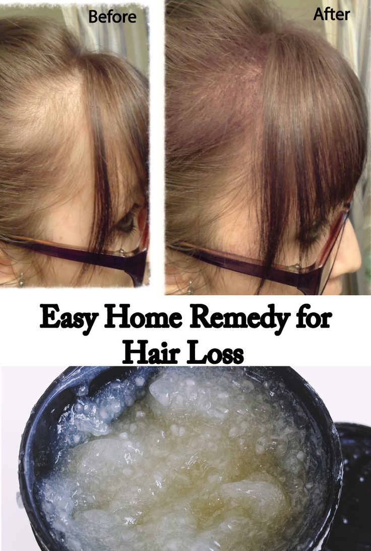 how to detect hair loss
