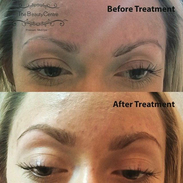 Brow extensions by @ellebacon93 visit: www.thebeautycentrebraintree.co.uk/beauty/brow-boutique for more information. #makeup #brows #beauty #salon #thebeautycentre #browextensions