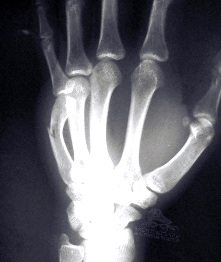 Hand Fracture / Recovery Time about 6 Weeks wrist hand