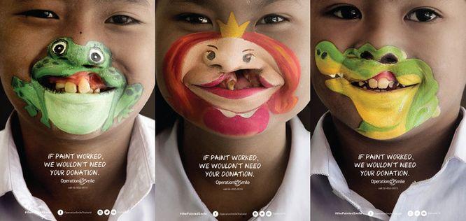 Un sourire pour tous les enfants (fente labio-palatine) #thepaintedsmile