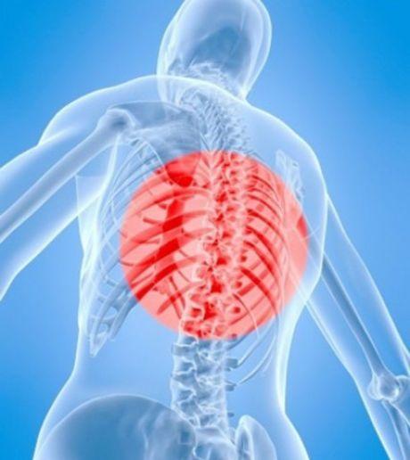 Как предотвратить остеохондроз — Полезные советы