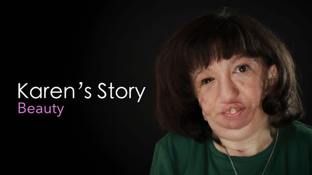 Watch Karen's Story: Beauty. Beauty. Sometimes appearances can be deceiving. But no matter what we see on the outside, we need to realize that on the inside…we're all the same: Fragile people who want to be loved. Karen shares her experience of being different and the comfort she gets from knowing that God created her and loves her perfectly.    http://skitguys.com/videos/item/karens-story-beauty