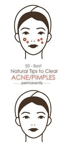 50 Home Remedies For Acne And Pimples. #remediespimple #acnescar