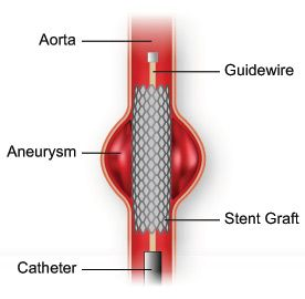 Cardiologists at the Texas Heart Institute were among the first to use a nonsurgical technique to treat high-risk patients with abdominal aortic aneurysms. The procedure uses a catheter to insert a device called a stent graft. The stent graft is placed within the artery at the site of the aneurysm. The blood flows through the stent graft, decreasing the pressure on the wall of the weakened artery. This decrease in pressure can prevent the aneurysm from bursting.