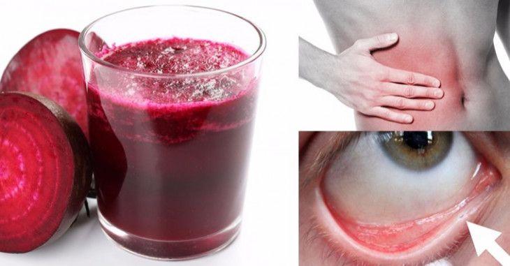 La barbabietola rossa: il tubero che disintossica il fegato e previene l'anemia