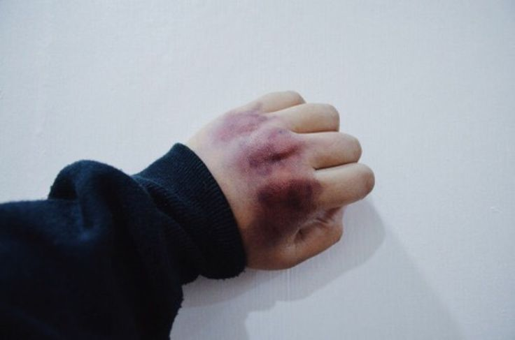 he punches the brick of his house to get aesthetic bruises on his hands