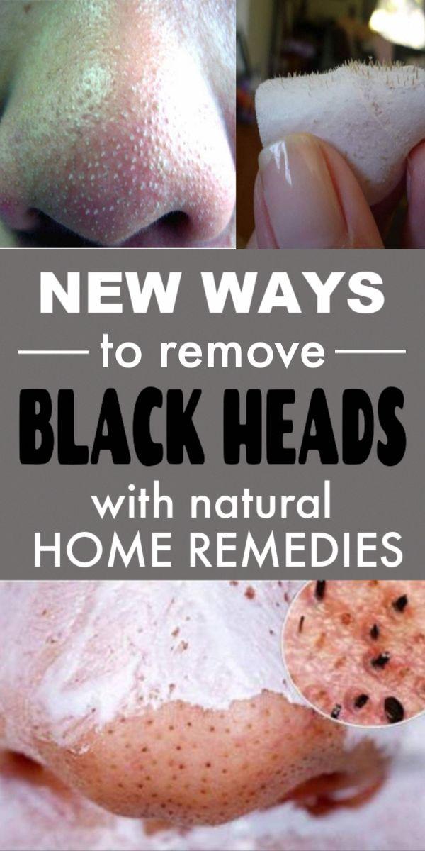 Blackheads Home Remedies #skincareroutine #homere…