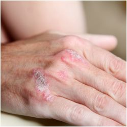 Psoriasis is a chronic skin disorder. It causes due to genetic factors and also environments factors. Psoriasis  is an everlasting skin complication that causes skin cells to breed too immediately which mostly appears on, hands, elbows, neck and ultimately causes whitish, silvery or red thick patches. Homeopathy is the best treatment  for curing psoriasis  in different approaches. Homeocare International provides naturally prepared Homeopathy remedies for psoriasis. http://www.homeocare.in