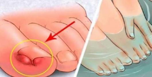 A cebola pode até nos fazer chorar, mas é uma das hortaliças com mais poderes de cura.Seu uso para tratar doenças é muito antigo.Por conter substâncias medicinais valiosas, é um excelente remédio natural para diversas enfermidades.