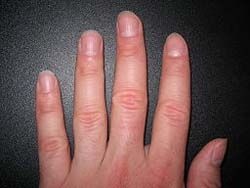 8 Health Warnings Your Fingernails May Be Sending  Fingernails and disease don't go together in most minds… but they should. Your fingernails can give you valuable health warnings and signal the presence of serious disease.  http://www.losethebackpain.com/blog/2012/01/11/fingernail-health-warnings/