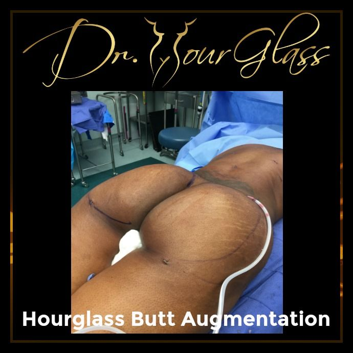 Women today are open to possibilities of undergoing Hourglass Butt Augmentation. One reason is that some men like women with bigger buttocks not only because these women are attractive but because some researchers found that women with bigger butts produce smarter kids. Hmm.. What can you say?