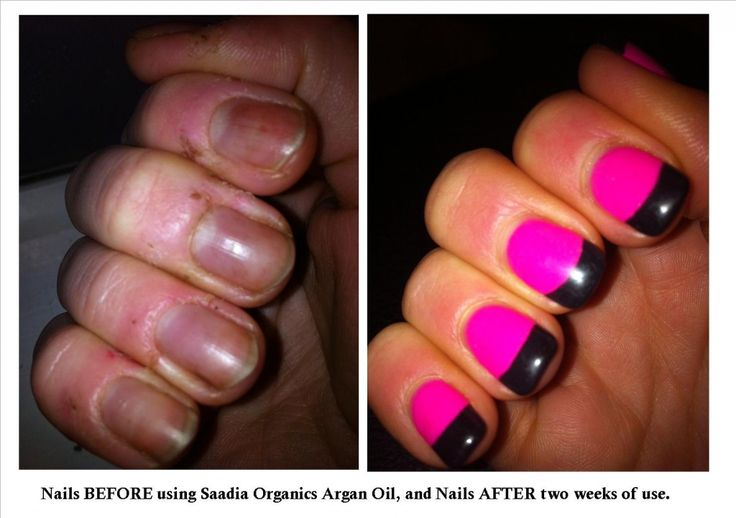 Amazing results after using Saadia Organic's Argan Oil