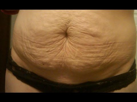 Tighten your sagging breast in a week Breast firming tightening home remedy for sagging breast - YouTube