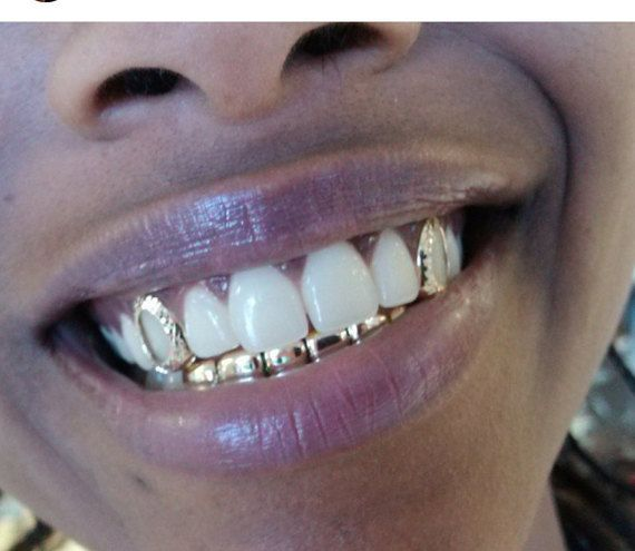 10k gold teeth top 2 bottom 6 by GRILLZGODZ on Etsy