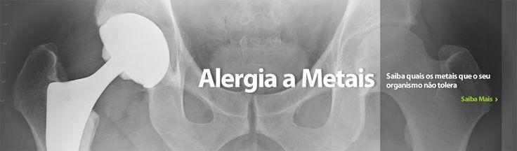 Alergia a metais