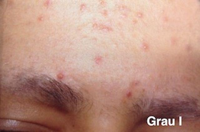 Tipos de Acne: conheça os diferentes graus da acne