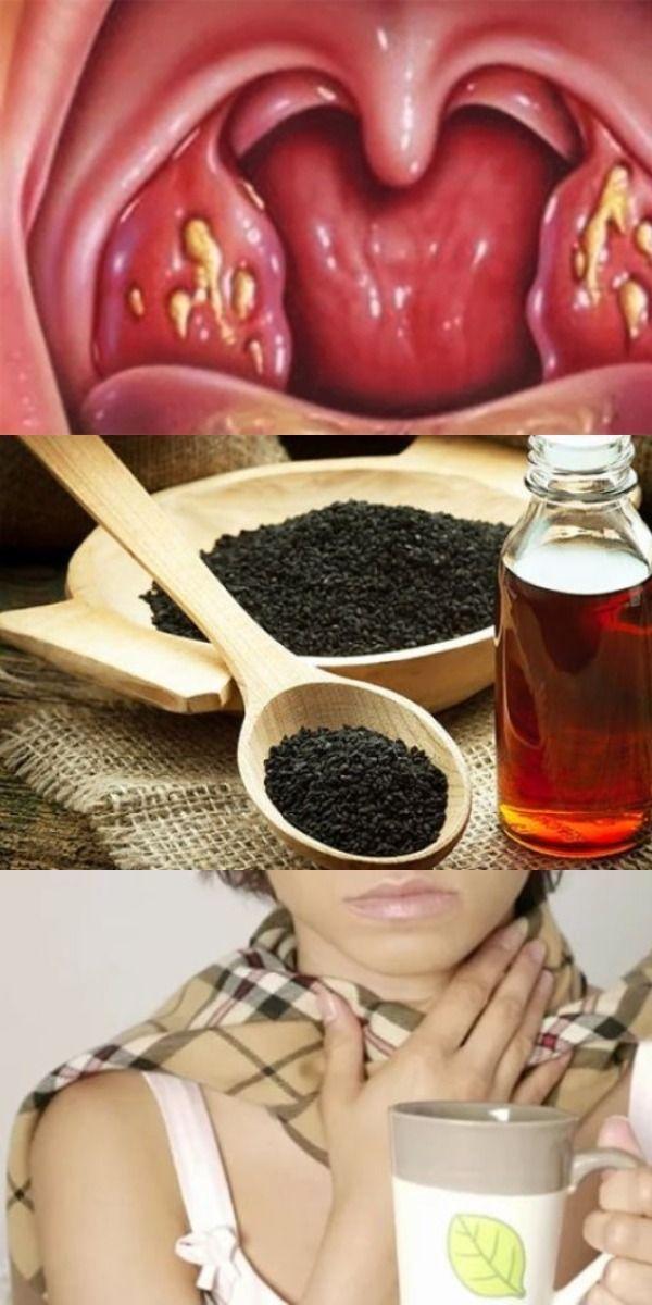 Может или нет болеть горло при простатите приемы массажа простатита