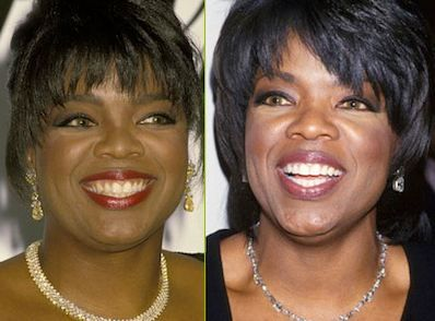 Oprah Winfrey Before and After Invisalign | Celebs Rockin ...