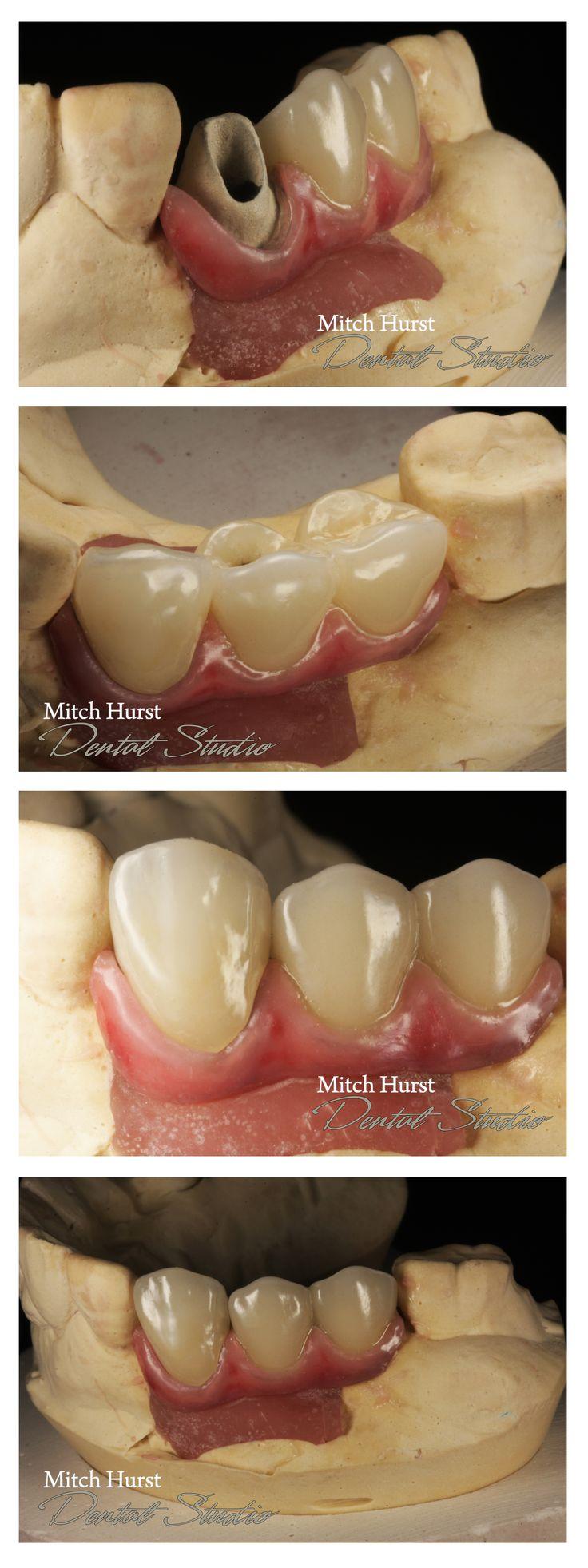 dental, smile makeover, dental implants, beautiful, hurstdentalstudio.com