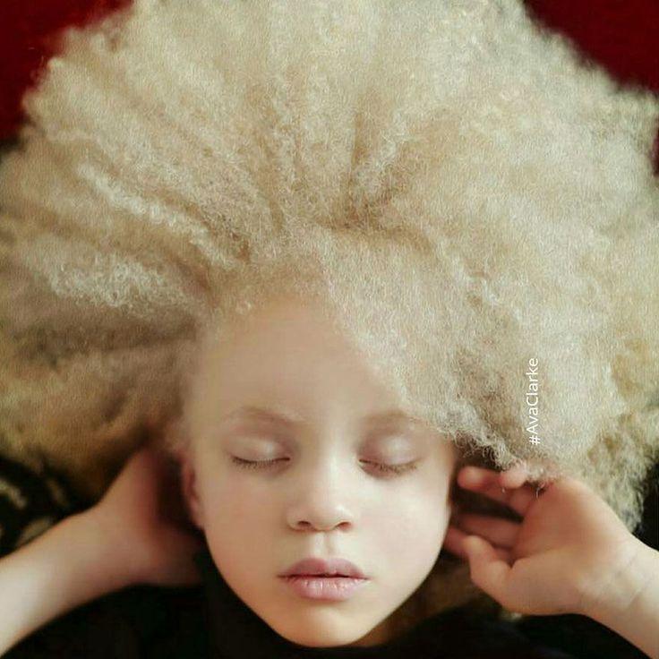 10 fotos de pessoas albinas que irão te surpreender por sua beleza hipnotizante