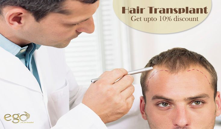 ‪#‎HairTransplant‬ Get upto 10% discount in all ‪#‎hair‬ treatments. For more detail Visit: www.goego.in/hairtransplant