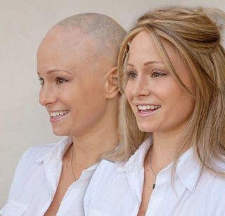 Georgia Van Cuylenburg: aos 20 anos, ela foi diagnosticada com alopecia areata, uma doença que a faz perder cabelo
