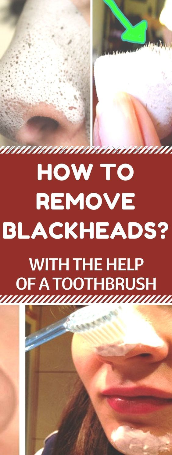 Remove blackheads from your skin by toothbrush and…
