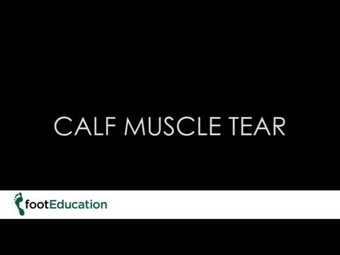Calf Muscle Tear (Gastrocnemius Tear) - footEducation