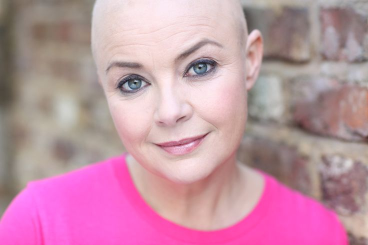 7 Women You Won't Believe Actually Exist ~ Gail Porter, the woman with no hair, was a model for magazines like FHM.  Then in 2005, she started losing all her hair she had alopecia and there is no cure. Some of her hair came back in between 2006-10, but in 2011 it began falling out again.  But, she still models. LikeShareTweet.com