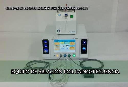 Ablación por Radiofrecuencia para las Várices