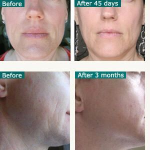 red led light facial rejuvenation