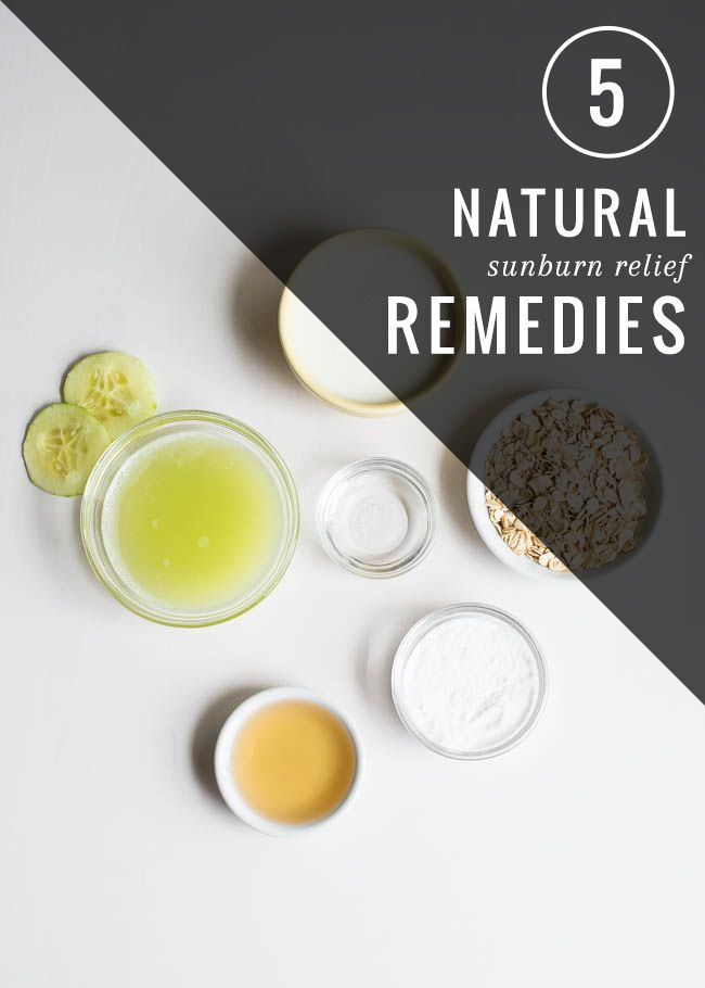 5 Natural Sunburn Relief Remedies - Henry Happened