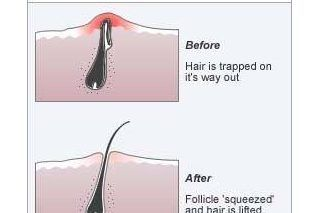 How to Remove Dark Spots From Razor Bumps & Ingrown Hairs   eHow