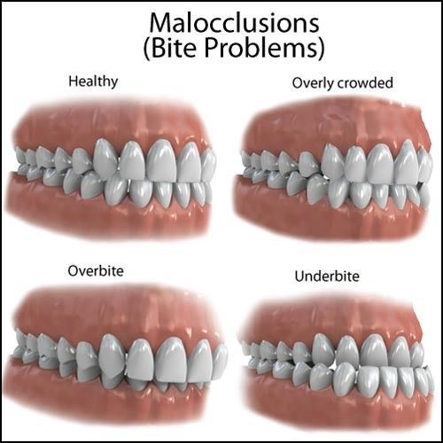 """""""Hereditary factors may cause malocclusion problems such as crossbite, overbite and underbite.  No worries. There is nothing a pair Lookswoow hands and our clever-looking braces cannot fix – teeth-wise, of course.  #Lookswoow #braces #dentalhealth """""""