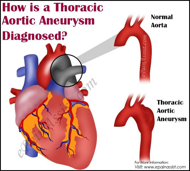 How Is A Thoracic Aortic Aneurysm Diagnosed Aortic Aneurysm Aneurysm Thoracic