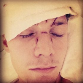 Barron Hilton Allegedly Beaten By Lindsay Lohan Pal Ray LeMoine [READ MORE: http://uinterview.com/news/barron-hilton-allegedly-beaten-by-lindsay-lohan-pal-ray-lemoine-9785] #barronhilton #lindsaylohan #raylemoine #nickyhilton #parishilton #assault #attack