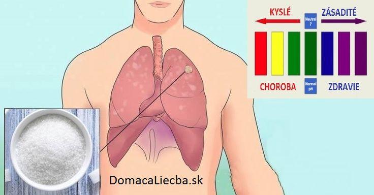 Rakovinové bunky má v tele každý. Takto zabránite, aby sa z nich stal nádor
