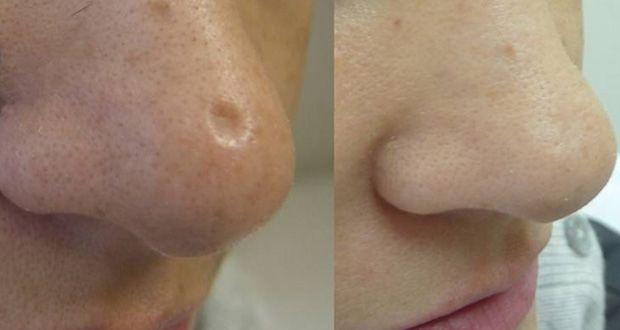 Débarrassez-vous des cicatrices sur la peau en utilisant ce remède naturel. Comment atténuer naturellement les cicatrices?