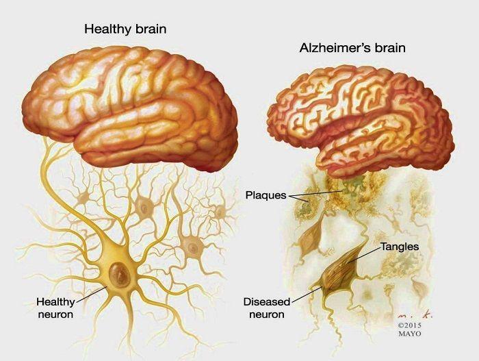 Αλτσχάιμερ: Μια ασθένεια ανεπάρκειας θρεπτικών ουσιών