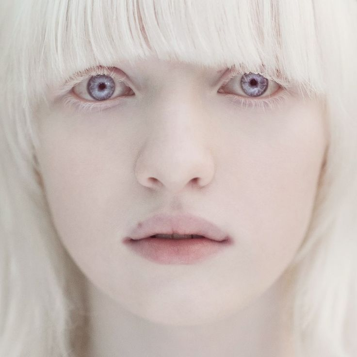 "crystallized-rose: "" lilac-smokesss: "" Albino model. Wow, she's so beautiful *__* Her name is Nastya Kumarova"