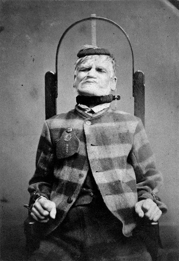 Enfermo mental de la época Victoriana #locura #vintage
