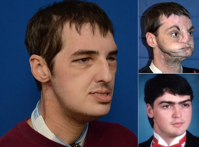 """The most extensive facial reconstruction surgery to date. """"Richard Lee Norris, who was injured in a 1997 gun accident, was pictured seven months after being given a new face, teeth, tongue and jaw in a 36-hour surgery at the University of Maryland Medical Center."""""""