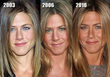 Jennifer Aniston Before and After Plastic Surgery http://www.dallascosmeticdental.com/dallas-smile-gallery.html