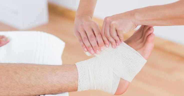 Foot sprains of the ankle ligaments are common, with about 25,000 occurring each day, according to the the American Academy of Orthopaedic Surgeons. Sprains usually result from the ankle turning inward. Tears in ligaments are known as sprains, while tears in muscle are called strains. Tears can be partial or complete, and are graded as minimal, or...