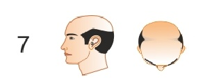 No one can guarantee total  reverse at this stage, but you can go for contemporary hair transplantation methods. Be ready for expenses also.