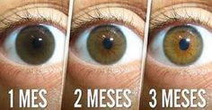 RECETA NATURAL PARA LIMPIAR LOS OJOS, REDUCIR LAS CATARATAS Y AUMENTAR LA VISIÓN EN 3 MESES..MAS SIMPLE IMPOSIBLE! ¡¡EVITA LA CIRUGÍA!!!