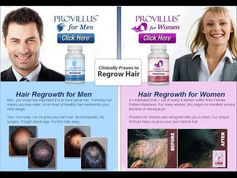 Best Hair Loss Treatment For Men And Women  - Provillus hair loss treatment for thinning hair or hair loss. Provillus is proven to cure alopecia areata also male and female pattern baldness. http://www.provillushairlosscures.com
