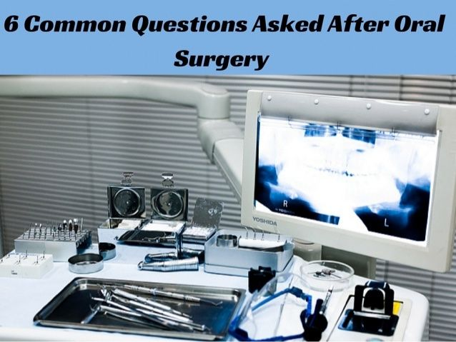 6 Common Questions Asked After Oral Surgery